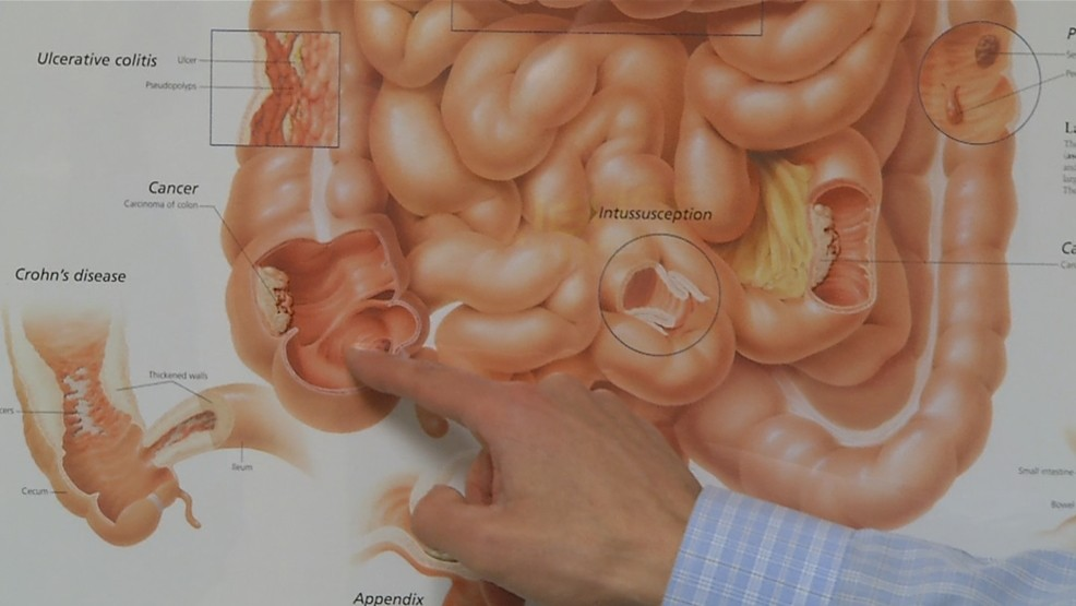 Health Check American Cancer Society Suggests Starting Colon Cancer Screening At 45 Wjar